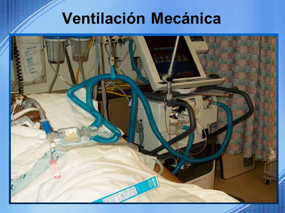 Ventilación Mecánica