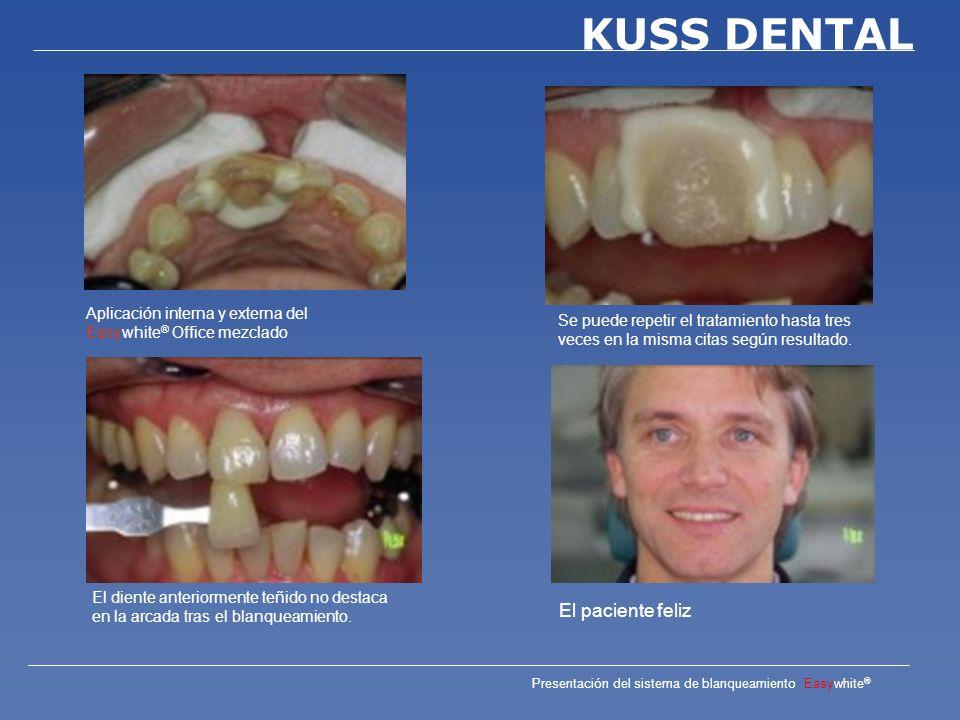 Presentación del sistema de blanqueamiento Easywhite ® KUSS DENTAL Medico: Dr.