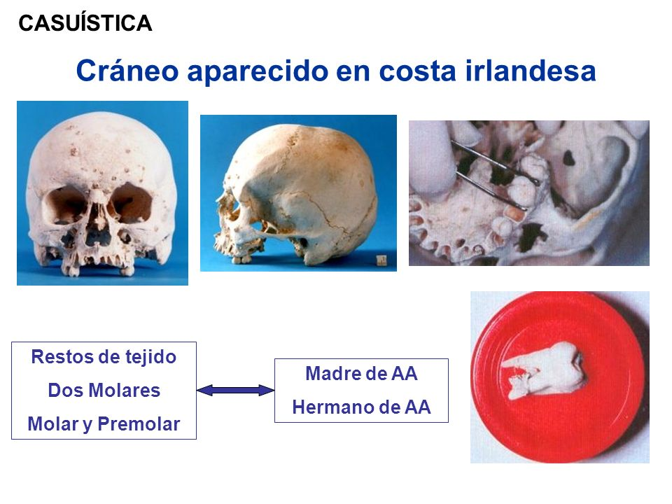 Cráneo aparecido en costa irlandesa CASUÍSTICA Restos de tejido Dos Molares Molar y Premolar Madre de AA Hermano de AA