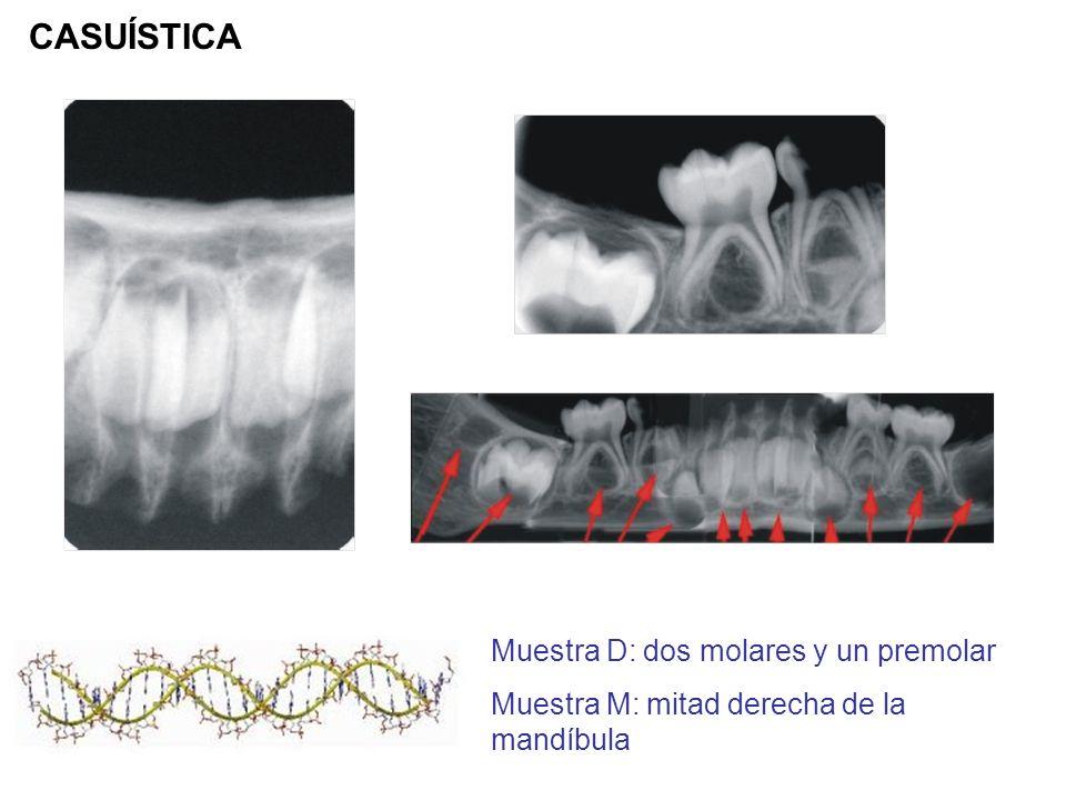Muestra D: dos molares y un premolar Muestra M: mitad derecha de la mandíbula