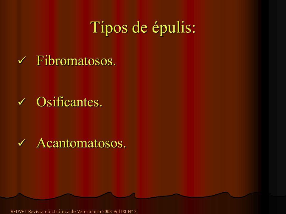 Tipos de épulis: Fibromatosos.Fibromatosos. Osificantes.