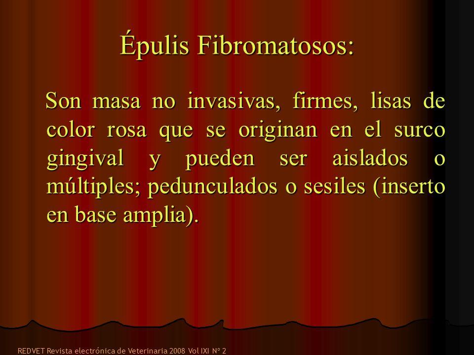 Épulis Fibromatosos: Son masa no invasivas, firmes, lisas de color rosa que se originan en el surco gingival y pueden ser aislados o múltiples; pedunculados o sesiles (inserto en base amplia).