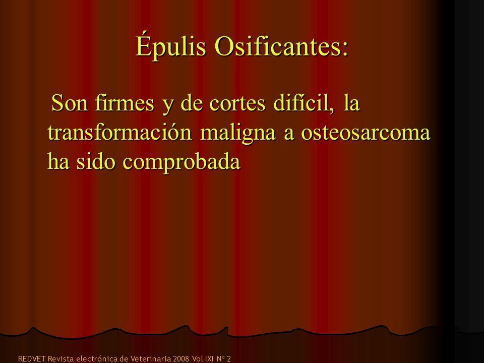 Épulis Osificantes: Son firmes y de cortes difícil, la transformación maligna a osteosarcoma ha sido comprobada Son firmes y de cortes difícil, la tra