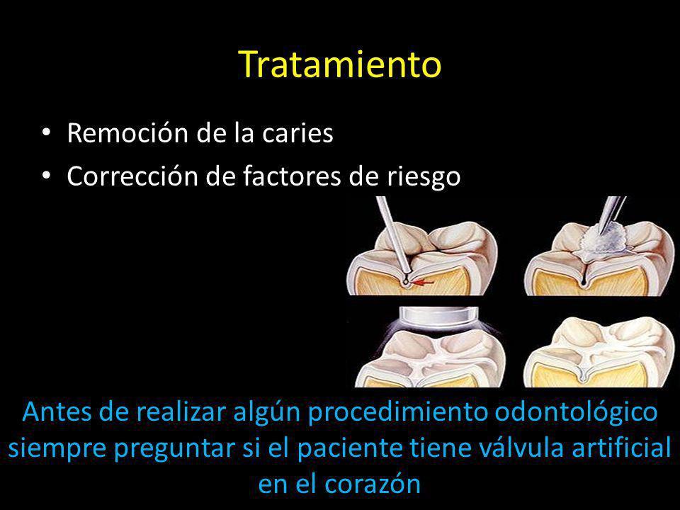 Tratamiento Remoción de la caries Corrección de factores de riesgo Antes de realizar algún procedimiento odontológico siempre preguntar si el paciente