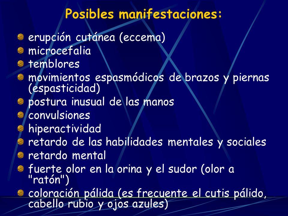 Posibles manifestaciones: erupción cutánea (eccema) microcefalia temblores movimientos espasmódicos de brazos y piernas (espasticidad) postura inusual