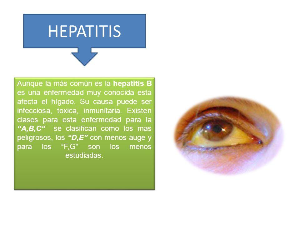 HEPATITIS Aunque la más común es la hepatitis B es una enfermedad muy conocida esta afecta el hígado. Su causa puede ser infecciosa, toxica, inmunitar