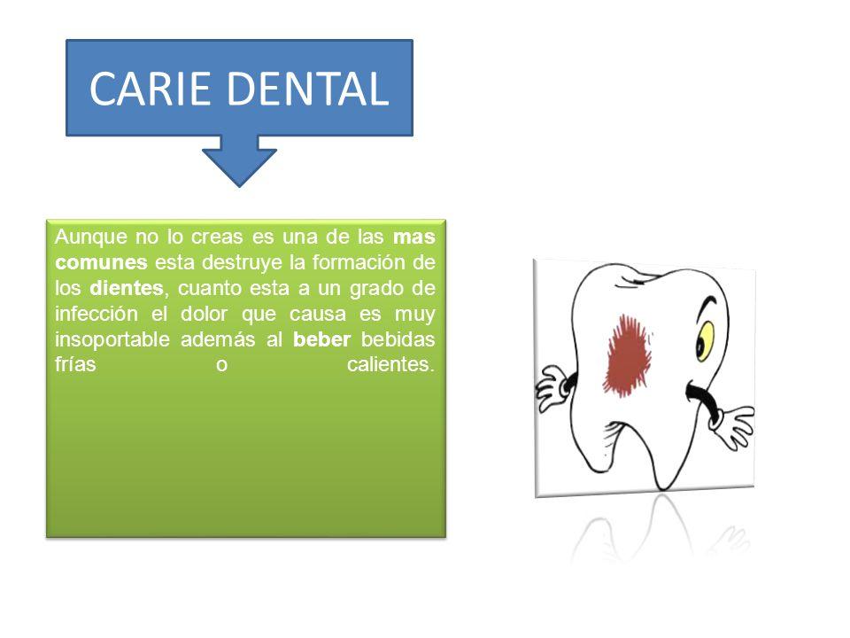 CARIE DENTAL Aunque no lo creas es una de las mas comunes esta destruye la formación de los dientes, cuanto esta a un grado de infección el dolor que