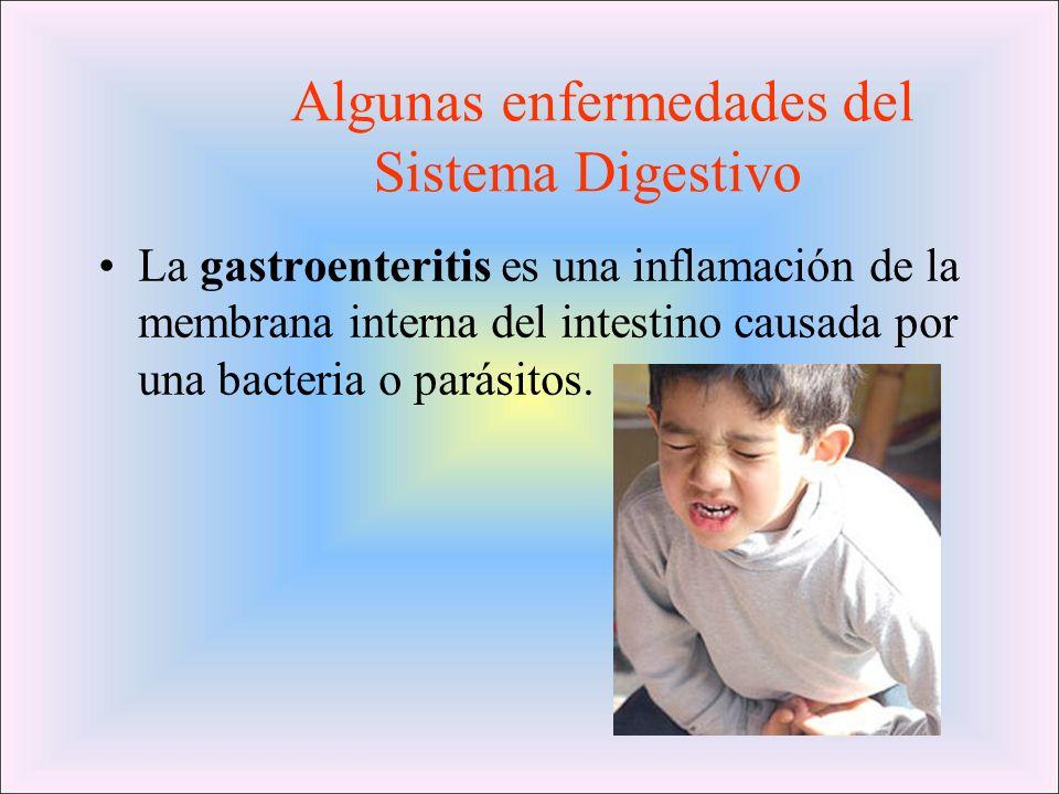 Algunas enfermedades del Sistema Digestivo La gastroenteritis es una inflamación de la membrana interna del intestino causada por una bacteria o parás