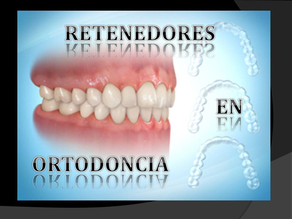 Aparato pasivo que se encarga de mantener los dientes en una posición ideal después de su movimiento.