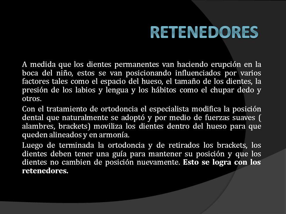 Placa de retención inferior usada como retenedor para evitar el movimiento de los dientes.