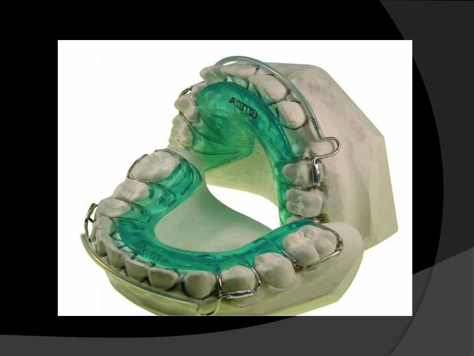 RETENEDORES Los retenedores son los aparatos que se utilizan en la fase de retención (fase posterior al tratamiento de ortodoncia).