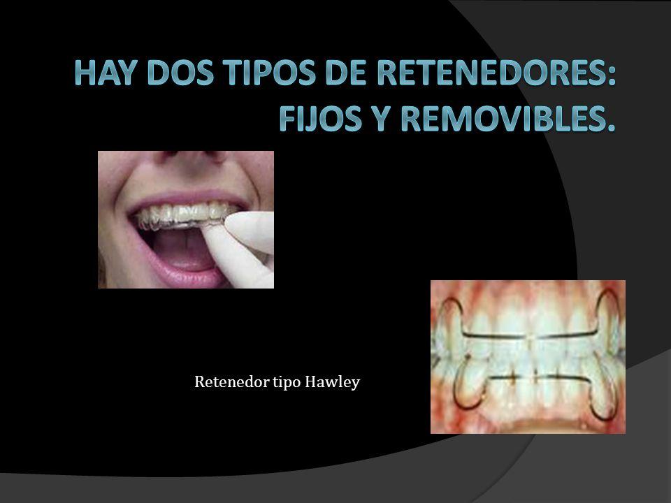 Los retenedores Fijos se usan por la cara interna del diente y tienen la gran ventaja de no verse ni incomodar.
