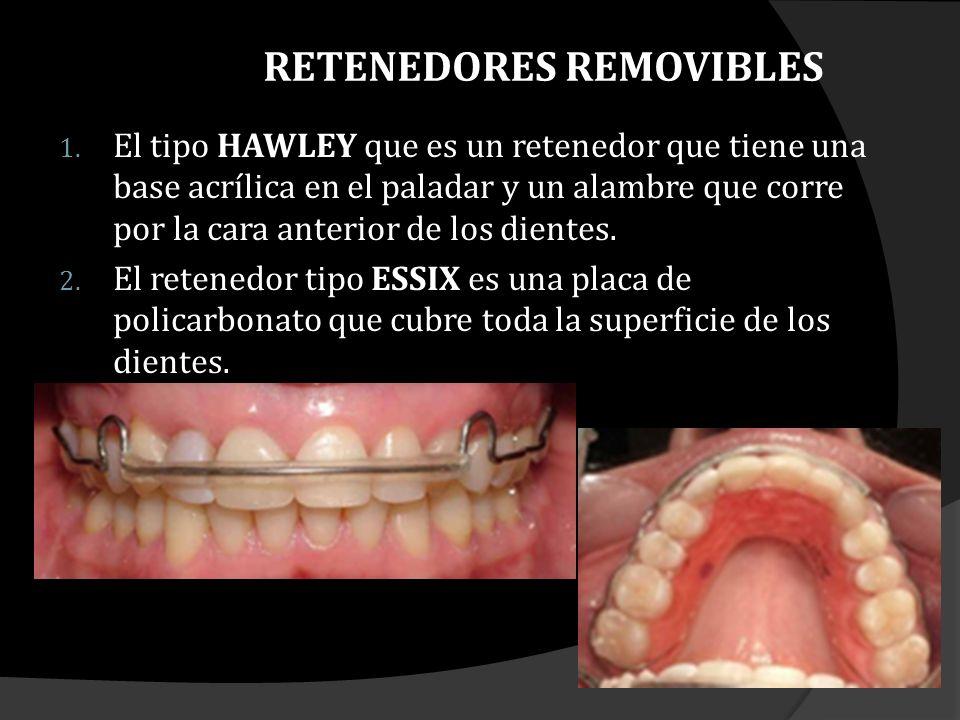 1.HAWLEY Tiene como ventaja su durabilidad y la facilidad para ajustarlo y pulirlo en las citas de revisión.