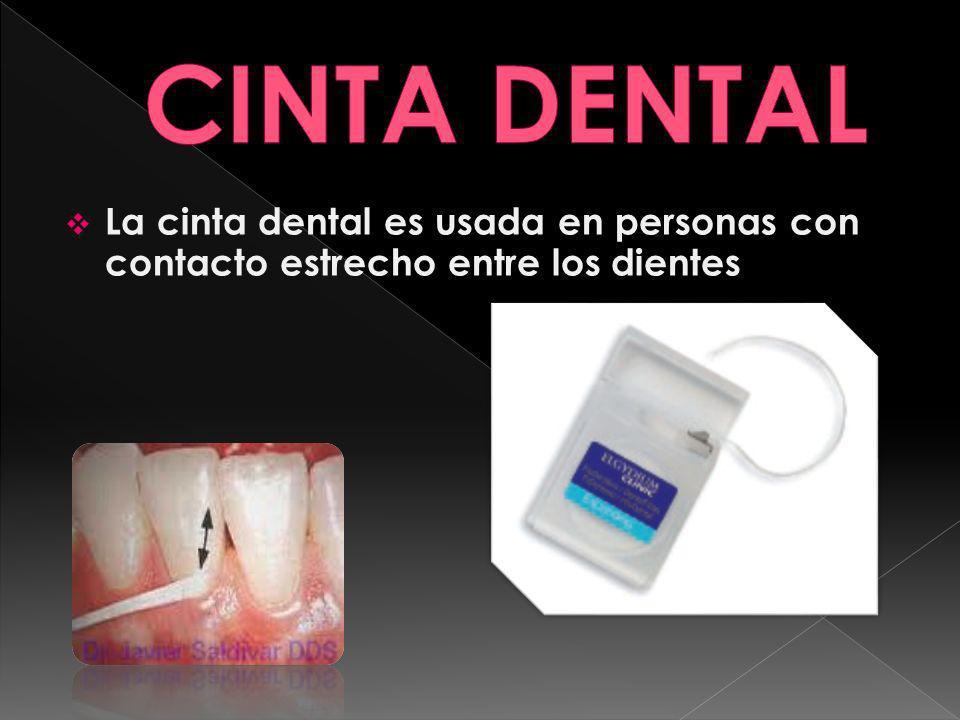 La cinta dental es usada en personas con contacto estrecho entre los dientes