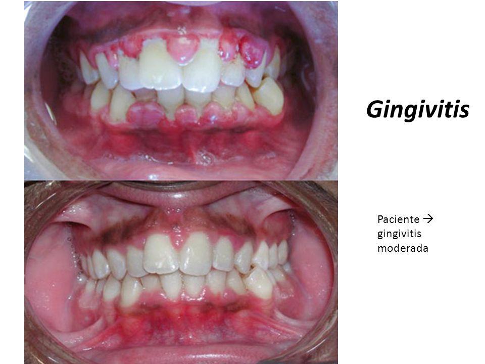 Gingivitis Paciente gingivitis moderada