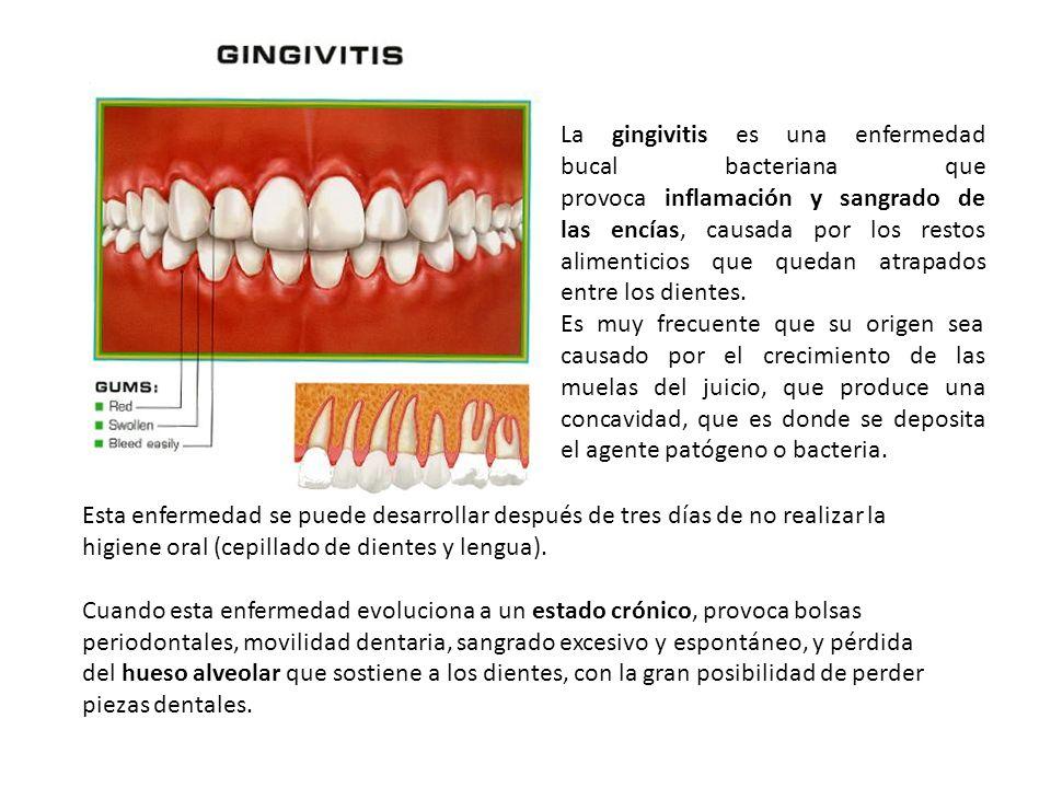 La gingivitis es una enfermedad bucal bacteriana que provoca inflamación y sangrado de las encías, causada por los restos alimenticios que quedan atra