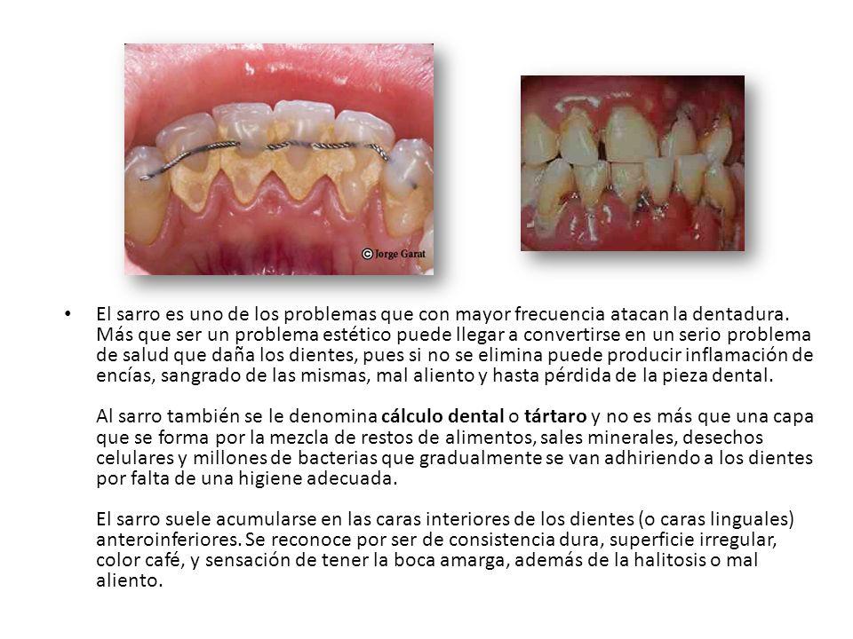 El sarro es uno de los problemas que con mayor frecuencia atacan la dentadura. Más que ser un problema estético puede llegar a convertirse en un serio