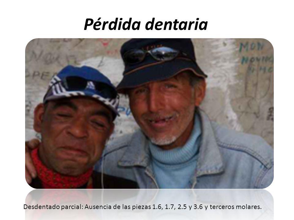 Pérdida dentaria Desdentado parcial: Ausencia de las piezas 1.6, 1.7, 2.5 y 3.6 y terceros molares.