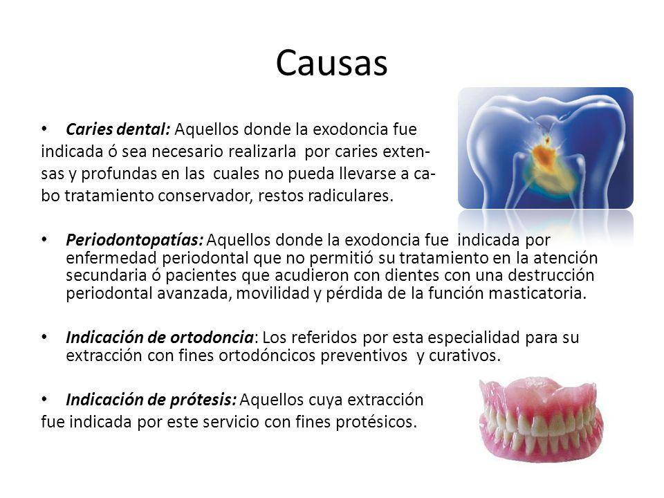 Causas Caries dental: Aquellos donde la exodoncia fue indicada ó sea necesario realizarla por caries exten- sas y profundas en las cuales no pueda lle