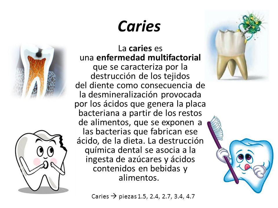 Caries La caries es una enfermedad multifactorial que se caracteriza por la destrucción de los tejidos del diente como consecuencia de la desmineraliz