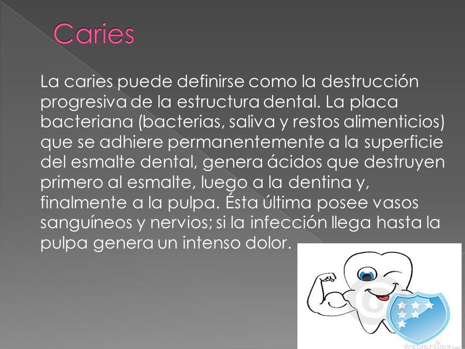 La caries puede definirse como la destrucción progresiva de la estructura dental. La placa bacteriana (bacterias, saliva y restos alimenticios) que se
