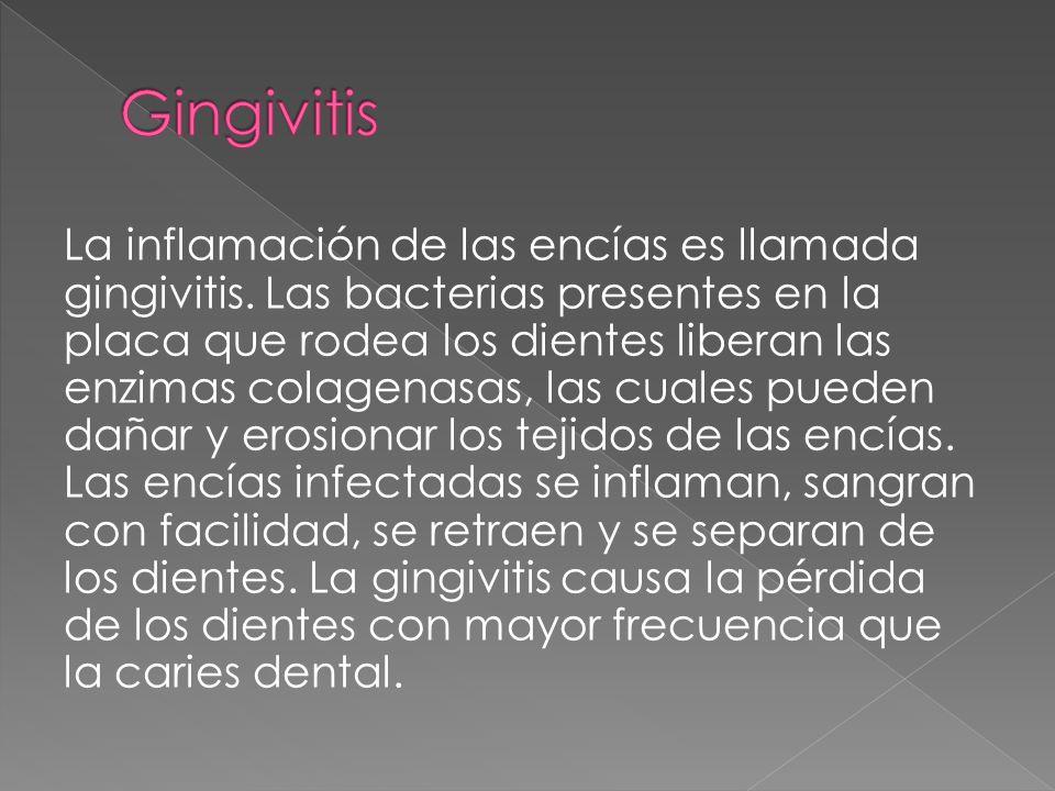 La inflamación de las encías es llamada gingivitis. Las bacterias presentes en la placa que rodea los dientes liberan las enzimas colagenasas, las cua
