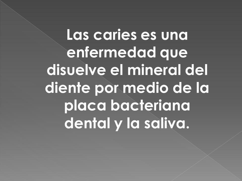 Las caries es una enfermedad que disuelve el mineral del diente por medio de la placa bacteriana dental y la saliva.