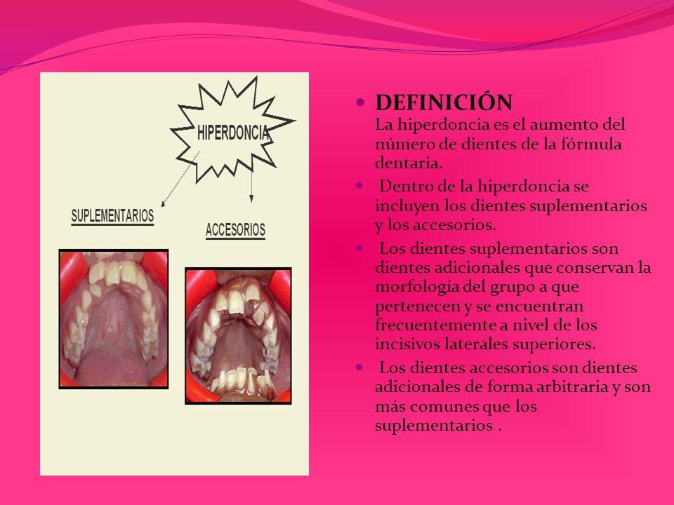 DEFINICIÓN La hiperdoncia es el aumento del número de dientes de la fórmula dentaria. Dentro de la hiperdoncia se incluyen los dientes suplementarios