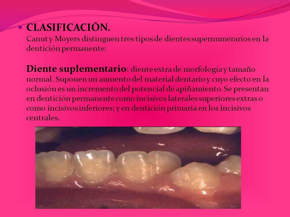 CLASIFICACIÓN. Canut y Moyers distinguen tres tipos de dientes supernumerarios en la dentición permanente: Diente suplementario : diente extra de morf