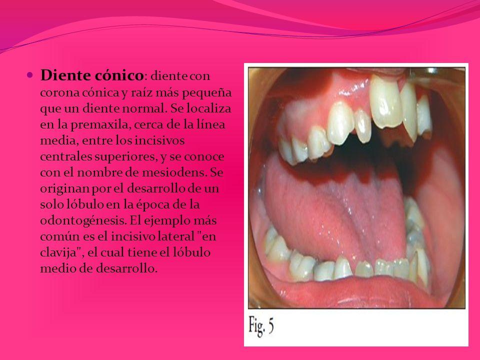 Diente cónico : diente con corona cónica y raíz más pequeña que un diente normal. Se localiza en la premaxila, cerca de la línea media, entre los inci