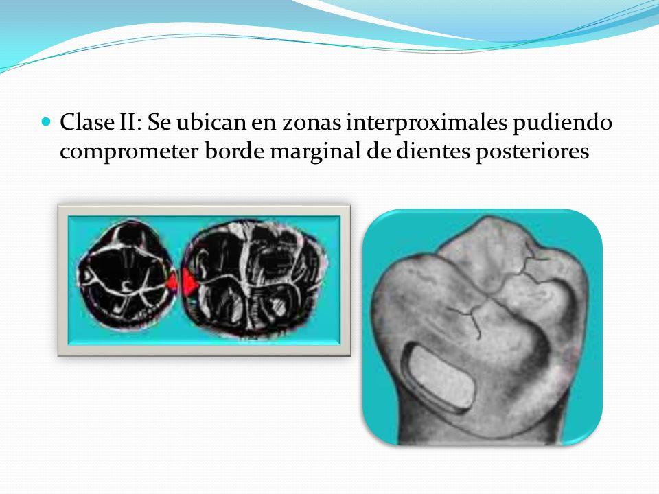 Clase II: Se ubican en zonas interproximales pudiendo comprometer borde marginal de dientes posteriores
