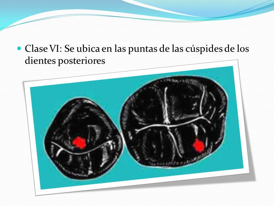 Clase VI: Se ubica en las puntas de las cúspides de los dientes posteriores