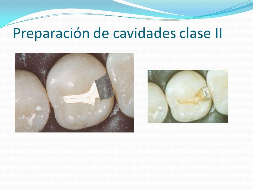 Preparación de cavidades clase II