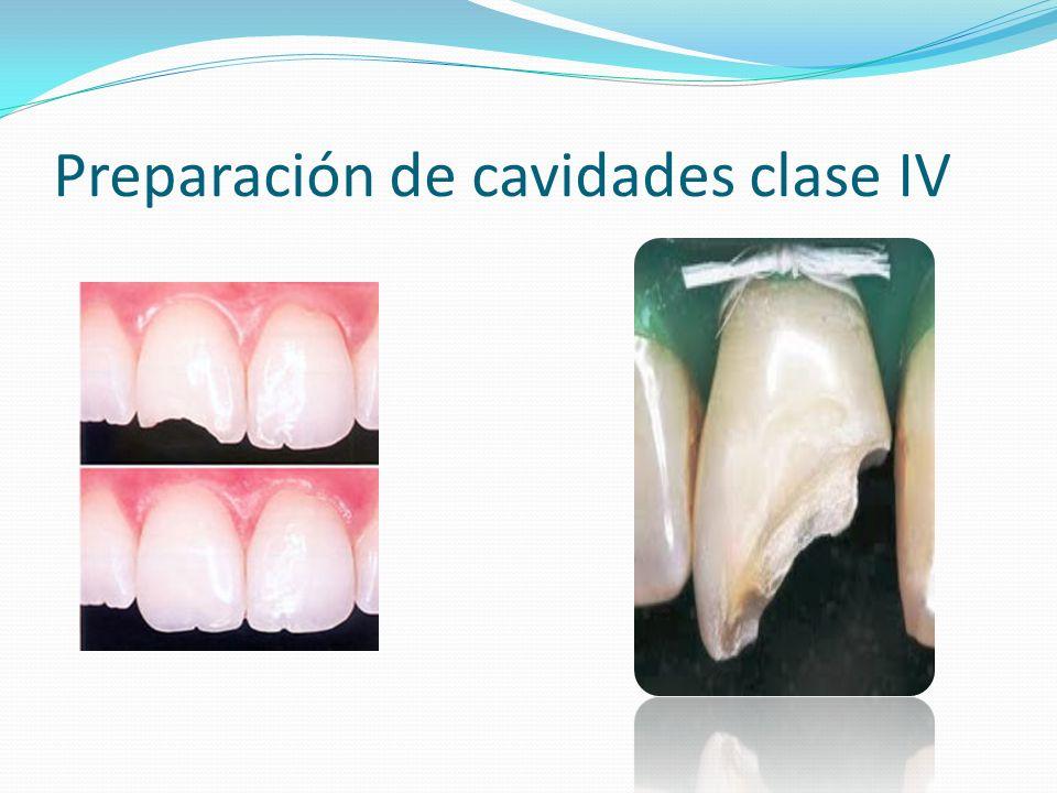 Preparación de cavidades clase IV