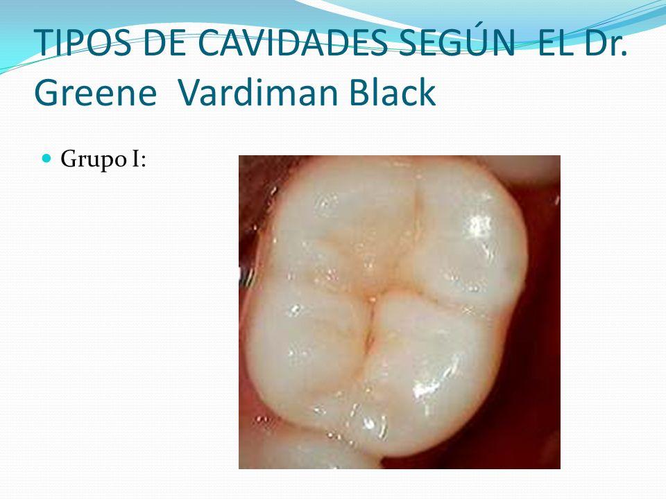 TIPOS DE CAVIDADES SEGÚN EL Dr. Greene Vardiman Black Grupo I: