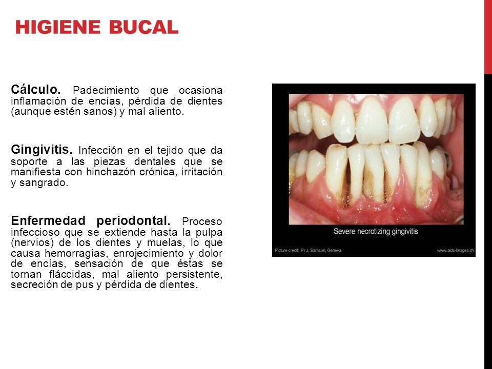Cálculo. Padecimiento que ocasiona inflamación de encías, pérdida de dientes (aunque estén sanos) y mal aliento. Gingivitis. Infección en el tejido qu
