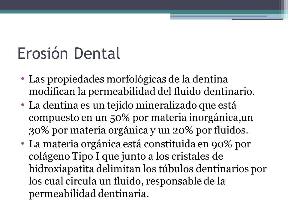 Erosión Dental Las propiedades morfológicas de la dentina modifican la permeabilidad del fluido dentinario. La dentina es un tejido mineralizado que e