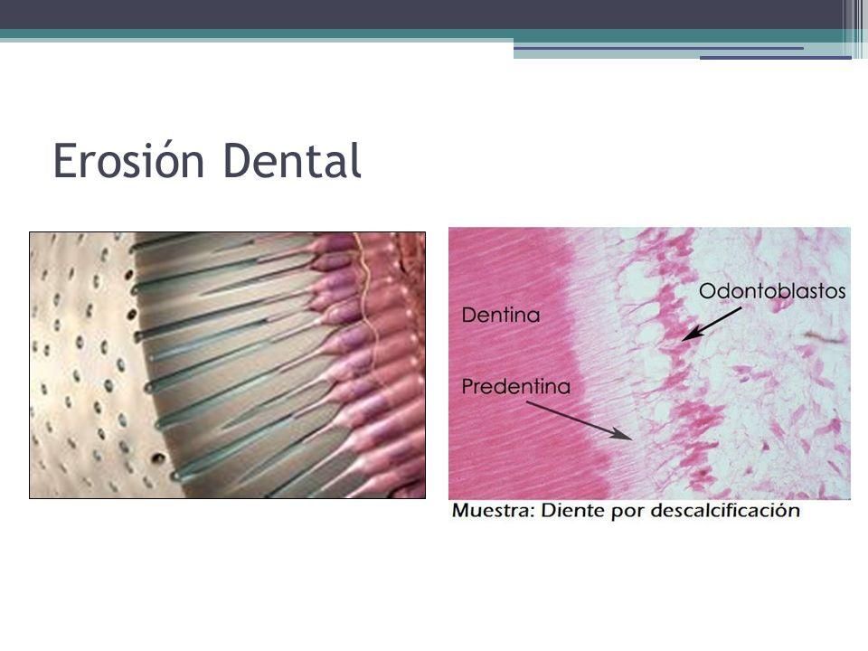 Sensibilidad dentinaria: llamada también hiperestesia dentinaria (dientes sensibles), es el aumento de sensaciones a los cambios térmicos (frío o calor), a los ácidos, a los dulces o por simple efecto mecánico de roce en las superficies dentales.