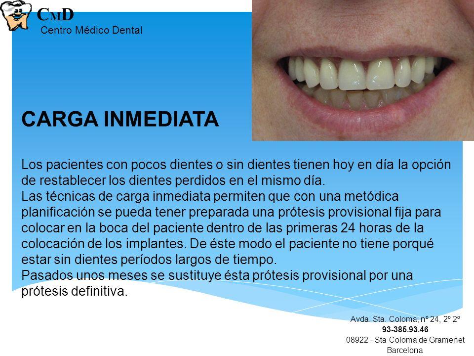 Avda. Sta. Coloma, nº 24, 2º 2º 93-385.93.46 08922 - Sta Coloma de Gramenet Barcelona CMDCMD Centro Médico Dental CARGA INMEDIATA Los pacientes con po