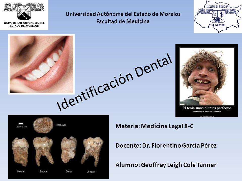 Identificación Dental Materia: Medicina Legal 8-C Docente: Dr.