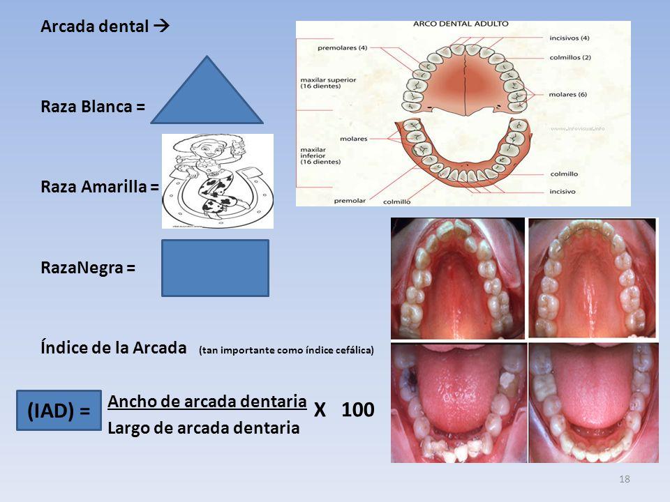Arcada dental Raza Blanca = Raza Amarilla = RazaNegra = Índice de la Arcada (tan importante como índice cefálica) Ancho de arcada dentaria Largo de arcada dentaria (IAD) = X 100 18