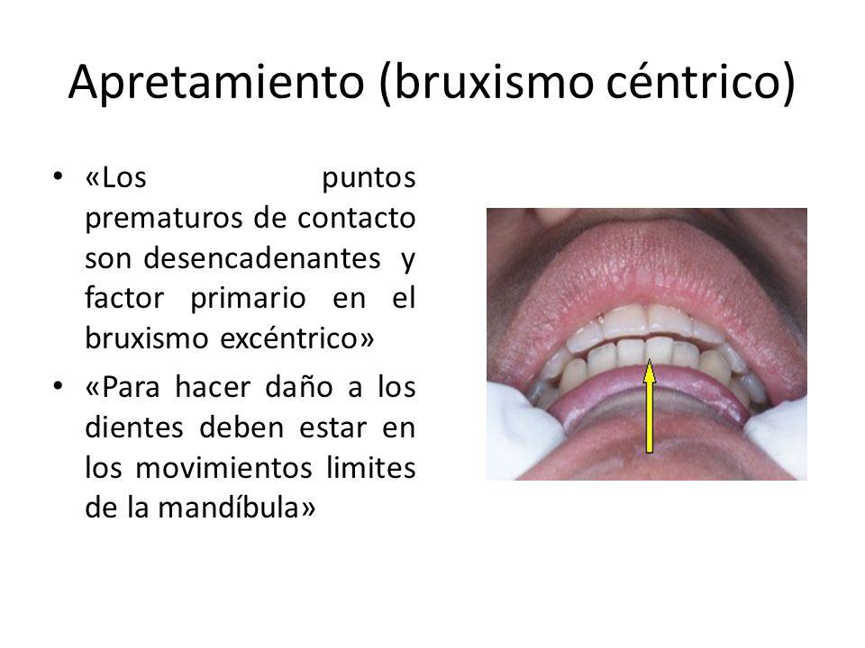 Apretamiento (bruxismo céntrico) «Los puntos prematuros de contacto son desencadenantes y factor primario en el bruxismo excéntrico» «Para hacer daño a los dientes deben estar en los movimientos limites de la mandíbula»