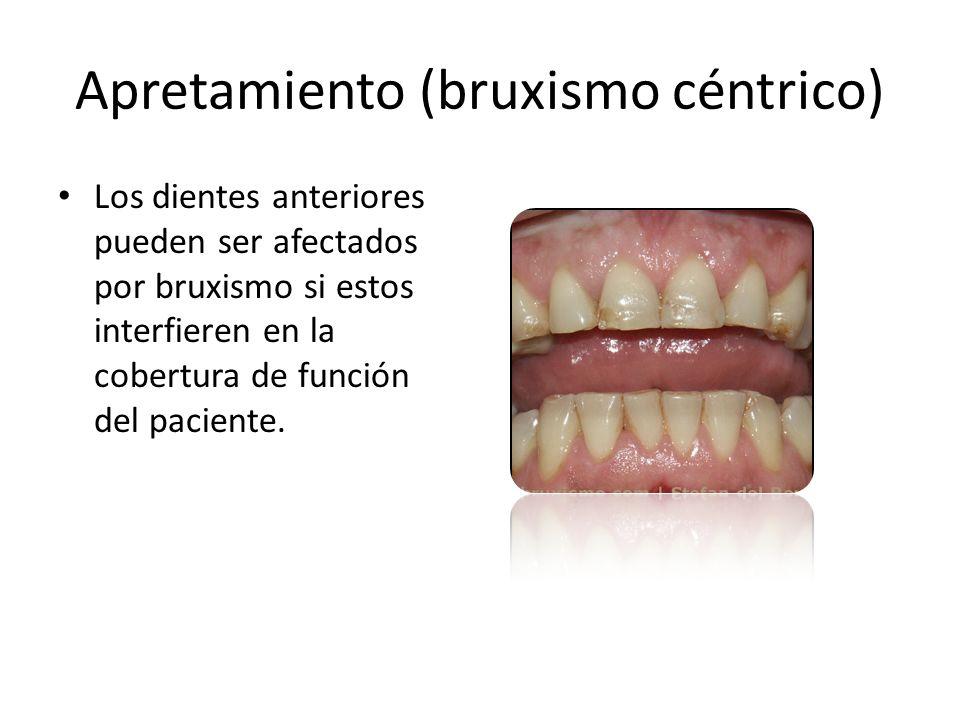 Apretamiento (bruxismo céntrico) Los dientes anteriores pueden ser afectados por bruxismo si estos interfieren en la cobertura de función del paciente.