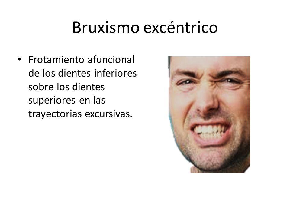 Bruxismo excéntrico Frotamiento afuncional de los dientes inferiores sobre los dientes superiores en las trayectorias excursivas.