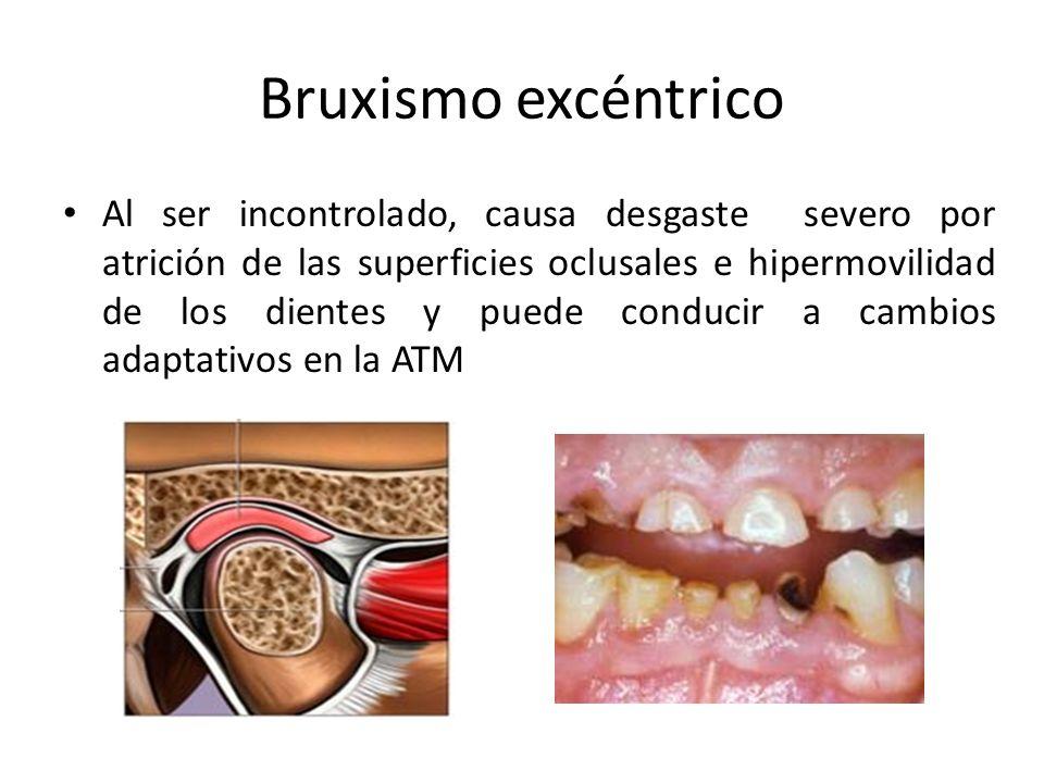 Bruxismo excéntrico Al ser incontrolado, causa desgaste severo por atrición de las superficies oclusales e hipermovilidad de los dientes y puede conducir a cambios adaptativos en la ATM