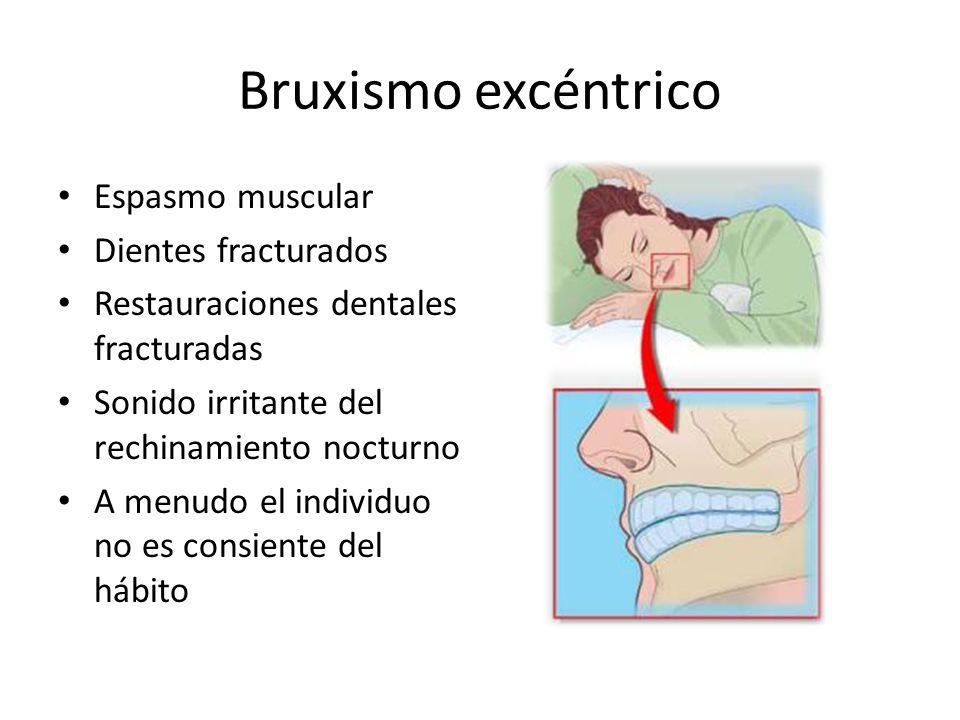 Bruxismo excéntrico Espasmo muscular Dientes fracturados Restauraciones dentales fracturadas Sonido irritante del rechinamiento nocturno A menudo el individuo no es consiente del hábito