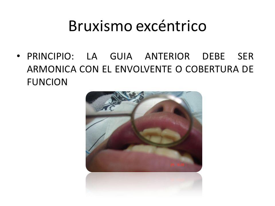 Bruxismo excéntrico PRINCIPIO: LA GUIA ANTERIOR DEBE SER ARMONICA CON EL ENVOLVENTE O COBERTURA DE FUNCION