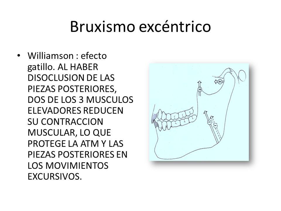 Bruxismo excéntrico Williamson : efecto gatillo.