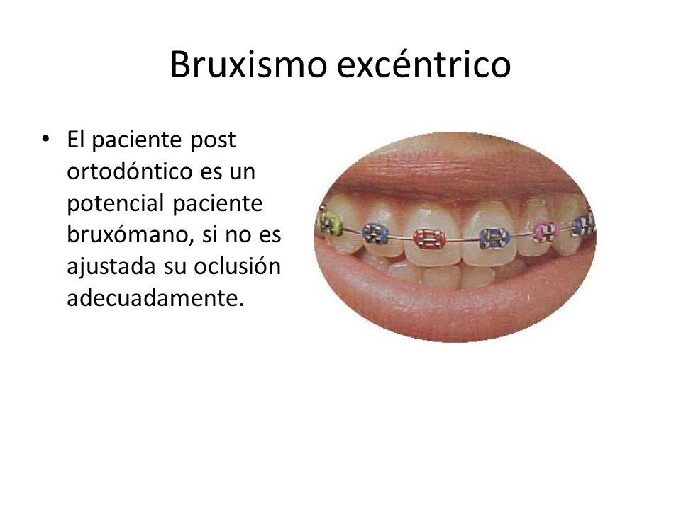 Bruxismo excéntrico El paciente post ortodóntico es un potencial paciente bruxómano, si no es ajustada su oclusión adecuadamente.