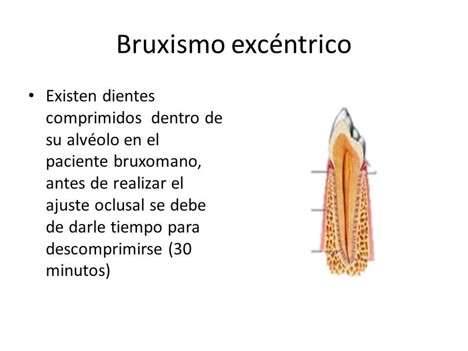Bruxismo excéntrico Existen dientes comprimidos dentro de su alvéolo en el paciente bruxomano, antes de realizar el ajuste oclusal se debe de darle tiempo para descomprimirse (30 minutos)